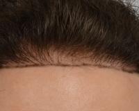 Dr.Bisanga BHR Cllinic, 2570 Hair line repair 0  9 months