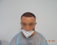1800 FUE  Hair line Repair