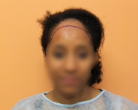 Traction Alopecia, 2634 STRIP 0  To  3 Years